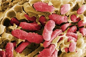 Для борьбы с раковыми клетками разработали самоуничтожающуюся бактерию
