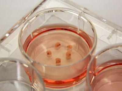 Пригодилсябы многим: сингапурские ученые создали мини-мозг