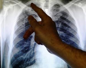 Почему нельзя забывать о туберкулезе