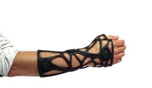 3D-печать вместо гипса при переломах