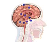 Новое устройство, помогающее быстро обнаружить рак мозга
