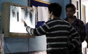 Более чем у четверти населения планеты имеется латентный туберкулез