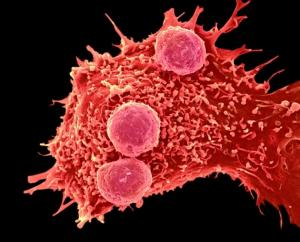 Генная инженерия CRISPR была впервые протестирована на человеке