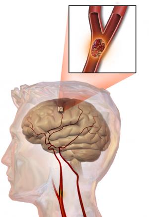 Противовоспалительный препарат восстанавливает поврежденные ткани мозга после инсульта