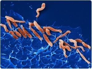 Ученые обнаружили новый рецептор бактерии Хеликобактер пилори