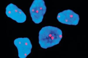 В одной из клиник Индии использовали стволовые клетки для борьбы с синдромом Дауна