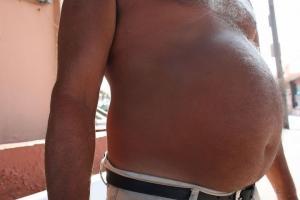 У мужчины удалили 60-килограммовую опухоль
