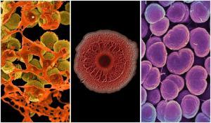 Всемирная организация здравоохранения опубликовала список опасных супербактерий