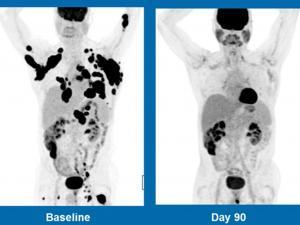 «Выдающееся» лекарство от рака способно излечить смертельно больных пациентов с лимфомой