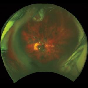 Три пациентки ослепли после применения терапии стволовыми клетками
