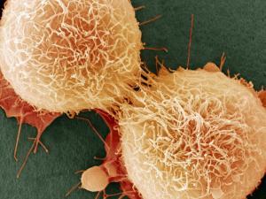 Не повезло: рак может быть вызван случайностью