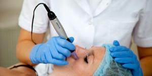 Что такое микроигольчатая терапия, или как прокалывание мельчайших дырочек на лице поможет выглядеть моложе?