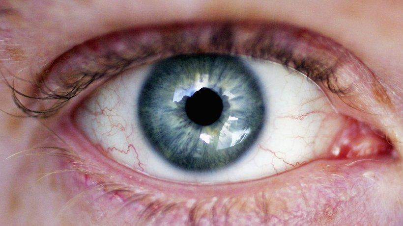 Как сделать так чтобы глаза не были  67