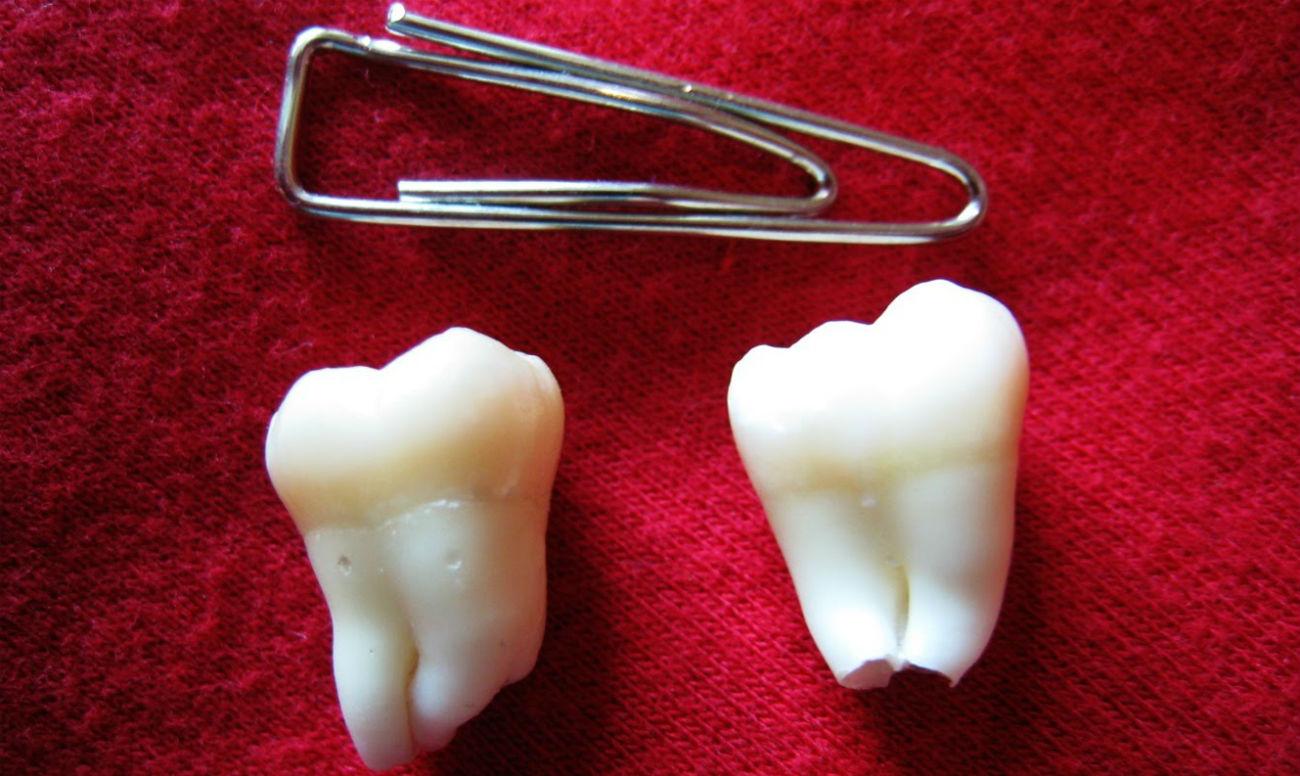 Можно вырвать зуб в домашних условиях 332