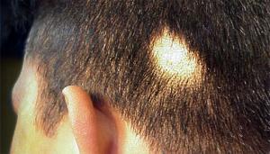 Новый метод лечения дает надежду вылечить заболевания кожи и волос