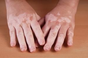 Применение руксолитиниба способствует репигментации у пациентов, страдающих от лицевого витилиго
