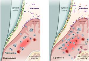 Ученые доказали, что диабет приводит к пародонтиту
