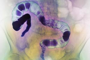 Один из типов бактерий может ускорить процесс развития рака толстой кишки
